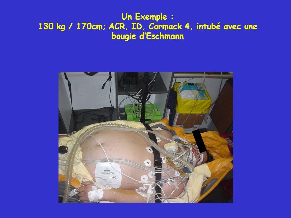 Un Exemple : 130 kg / 170cm; ACR, ID, Cormack 4, intubé avec une bougie d'Eschmann