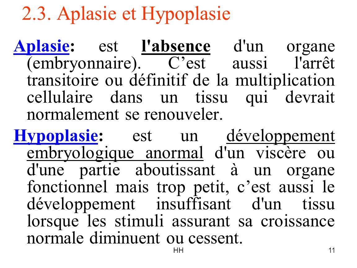 2.3. Aplasie et Hypoplasie