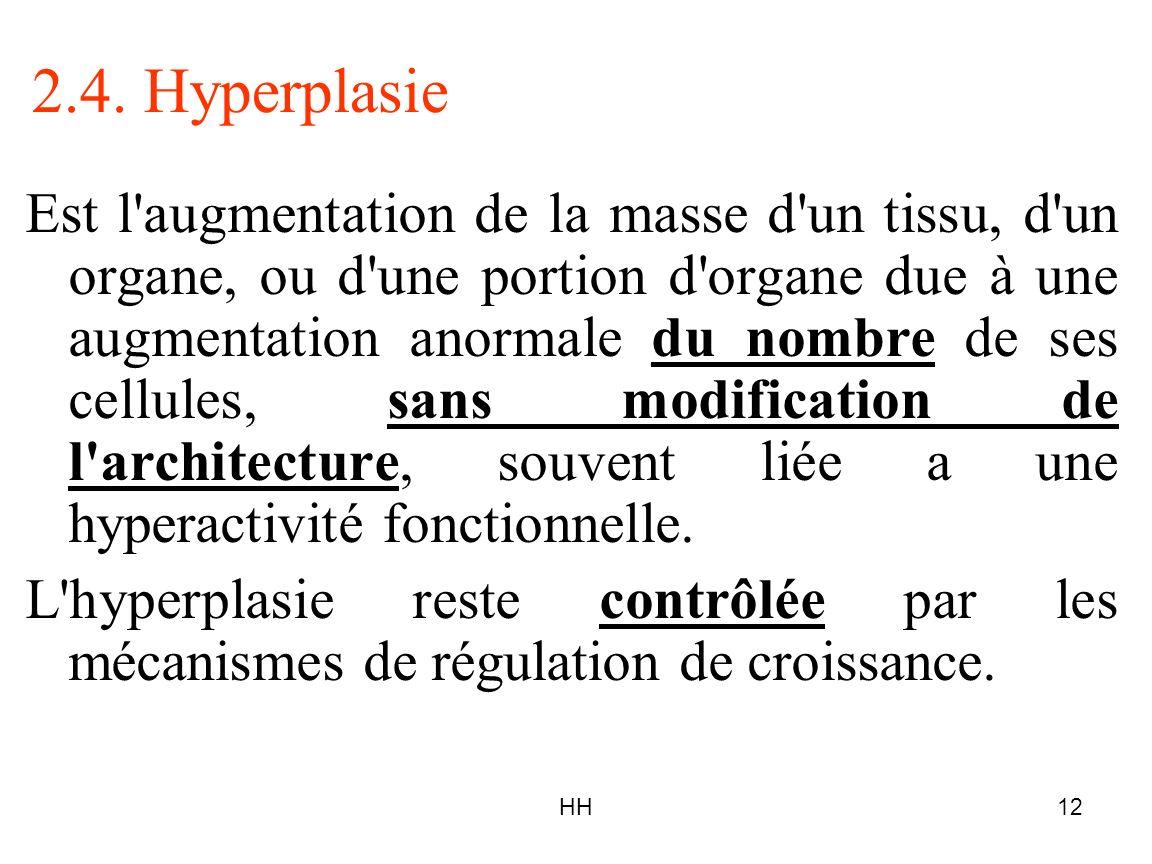 2.4. Hyperplasie