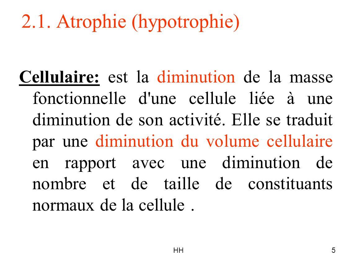2.1. Atrophie (hypotrophie)