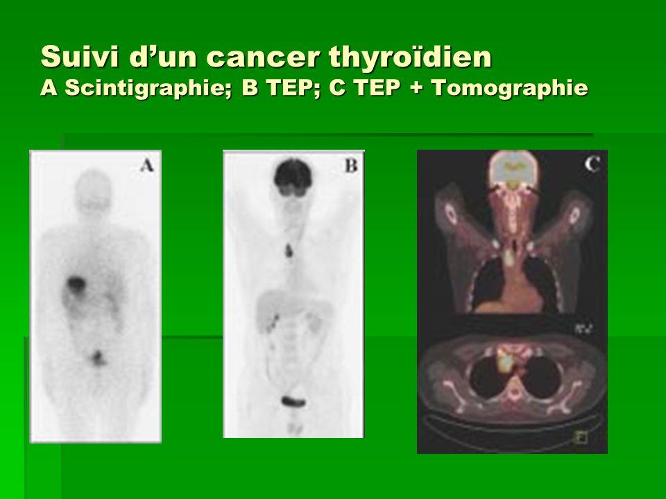 Suivi d'un cancer thyroïdien A Scintigraphie; B TEP; C TEP + Tomographie