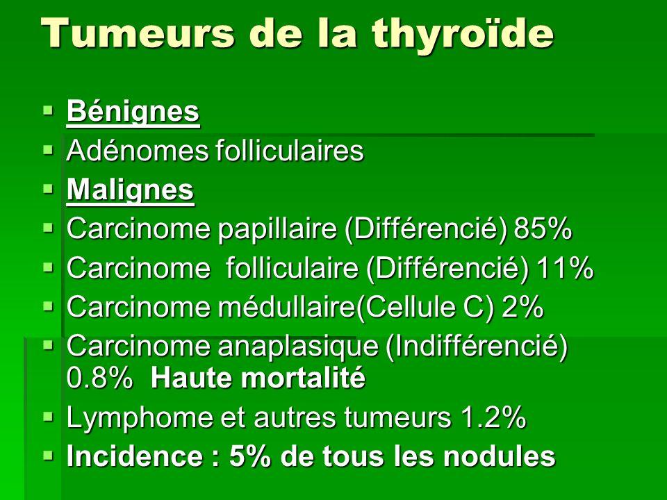 Tumeurs de la thyroïde Bénignes Adénomes folliculaires Malignes