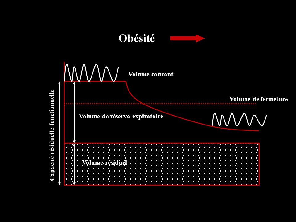 Obésité Volume courant Volume de fermeture