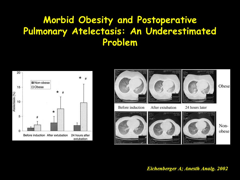 Morbid Obesity and Postoperative Pulmonary Atelectasis: An Underestimated Problem