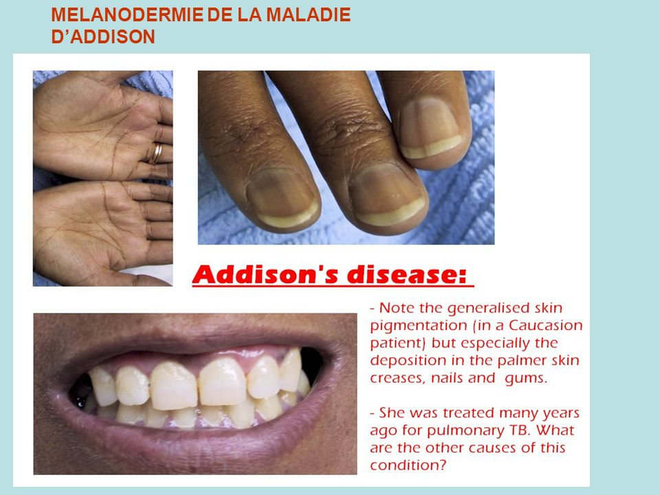 MELANODERMIE DE LA MALADIE D'ADDISON