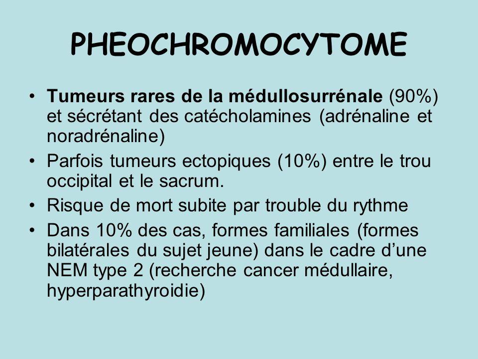 PHEOCHROMOCYTOME Tumeurs rares de la médullosurrénale (90%) et sécrétant des catécholamines (adrénaline et noradrénaline)