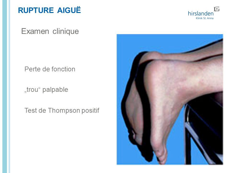 """Examen clinique RUPTURE AIGUË Perte de fonction """"trou palpable"""