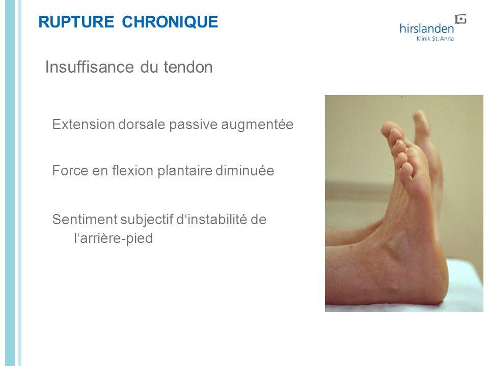 Insuffisance du tendon