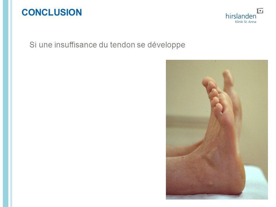 CONCLUSION Si une insuffisance du tendon se développe Seite Titel