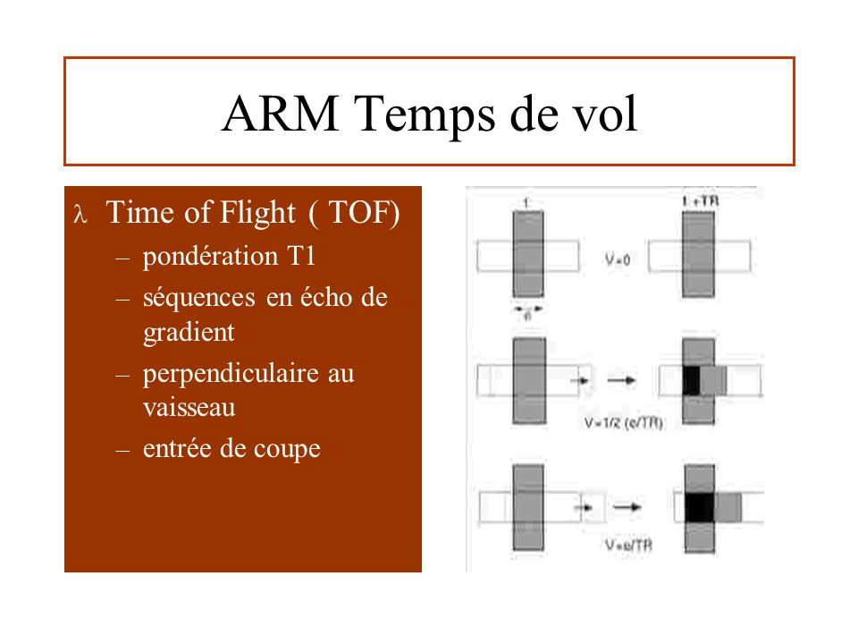ARM Temps de vol Time of Flight ( TOF) pondération T1