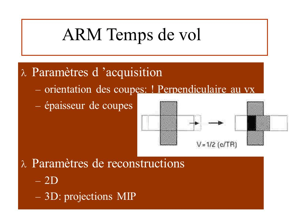ARM Temps de vol Paramètres d 'acquisition