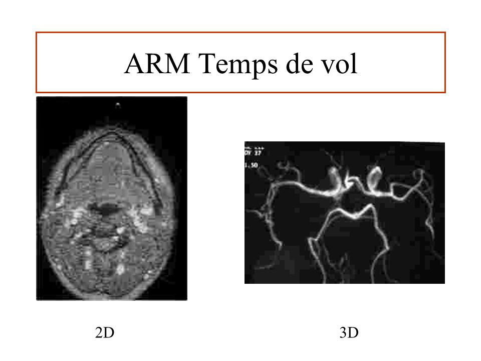 ARM Temps de vol 2D 3D