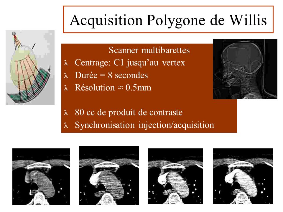 Acquisition Polygone de Willis