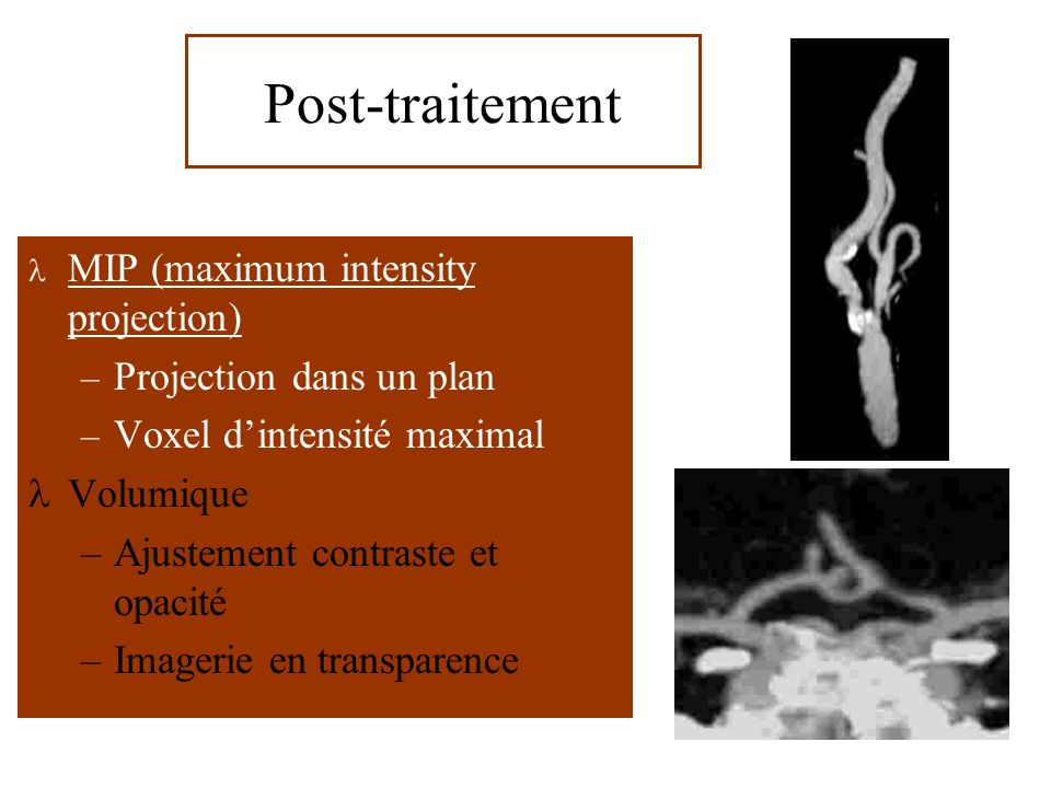 Post-traitement MIP (maximum intensity projection)