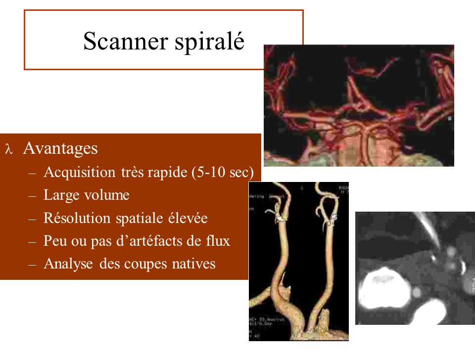 Scanner spiralé Avantages Acquisition très rapide (5-10 sec)