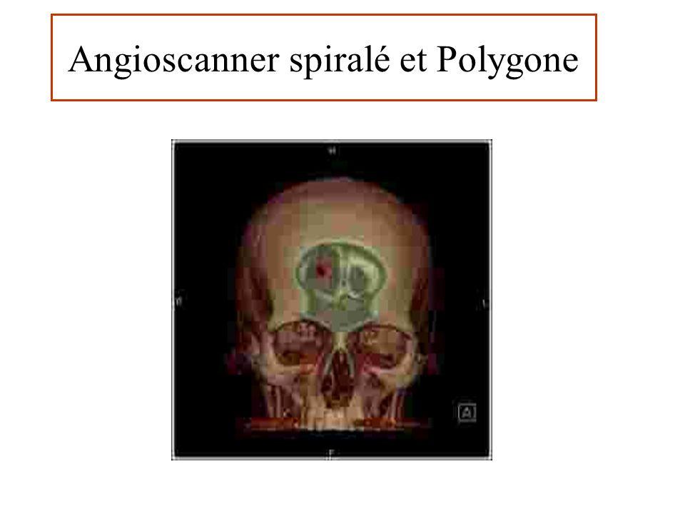 Angioscanner spiralé et Polygone