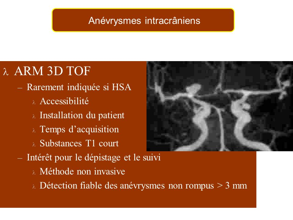 Anévrysmes intracrâniens