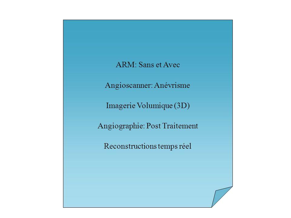 Angioscanner: Anévrisme Imagerie Volumique (3D)