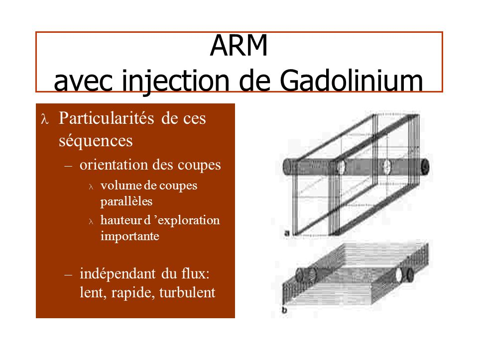ARM avec injection de Gadolinium