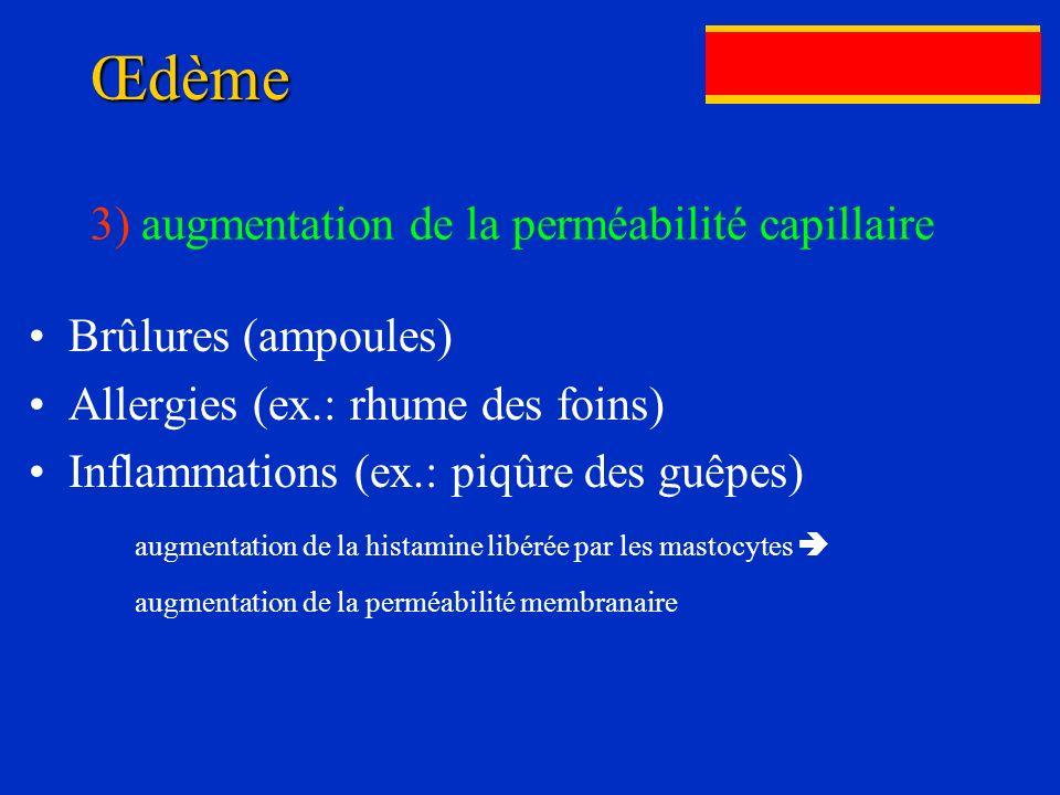 Œdème 3) augmentation de la perméabilité capillaire