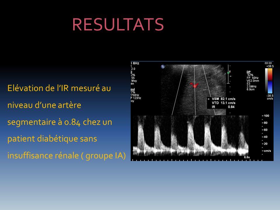 RESULTATS Elévation de l'IR mesuré au niveau d'une artère segmentaire à 0.84 chez un patient diabétique sans insuffisance rénale ( groupe IA)