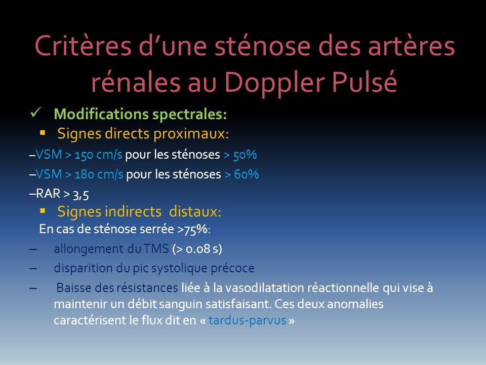 Critères d'une sténose des artères rénales au Doppler Pulsé