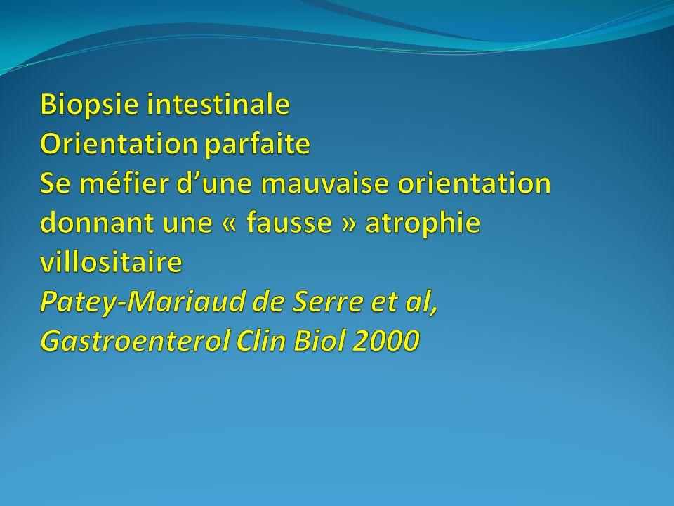 Biopsie intestinale Orientation parfaite Se méfier d'une mauvaise orientation donnant une « fausse » atrophie villositaire Patey-Mariaud de Serre et al, Gastroenterol Clin Biol 2000