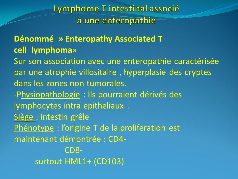 Lymphome T intestinal associé à une enteropathie