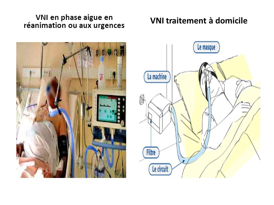 VNI en phase aigue en réanimation ou aux urgences