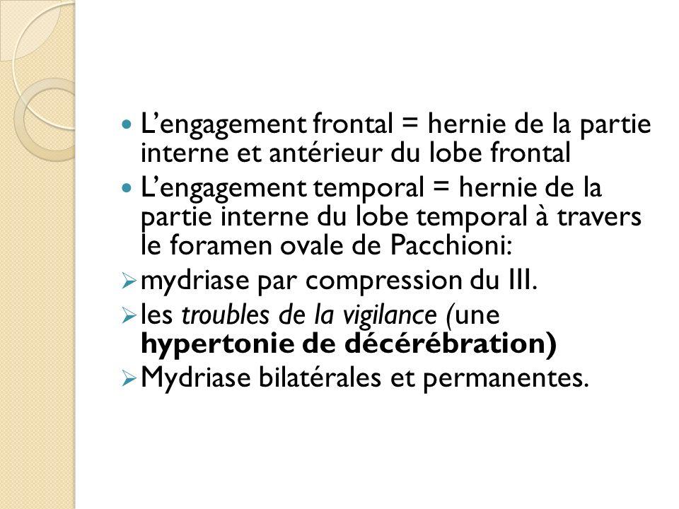 L'engagement frontal = hernie de la partie interne et antérieur du lobe frontal