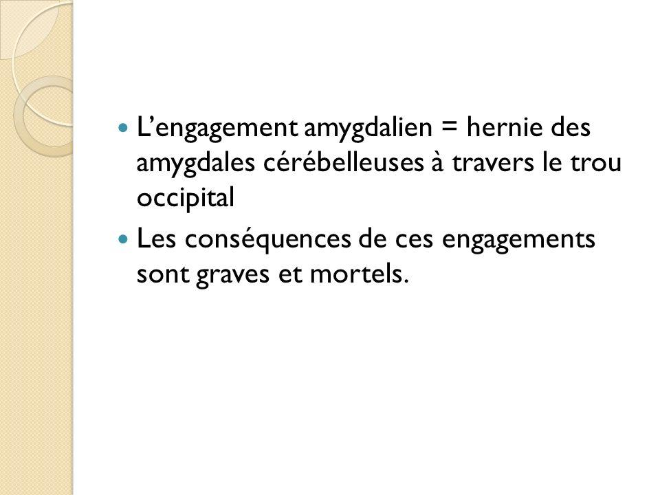 L'engagement amygdalien = hernie des amygdales cérébelleuses à travers le trou occipital