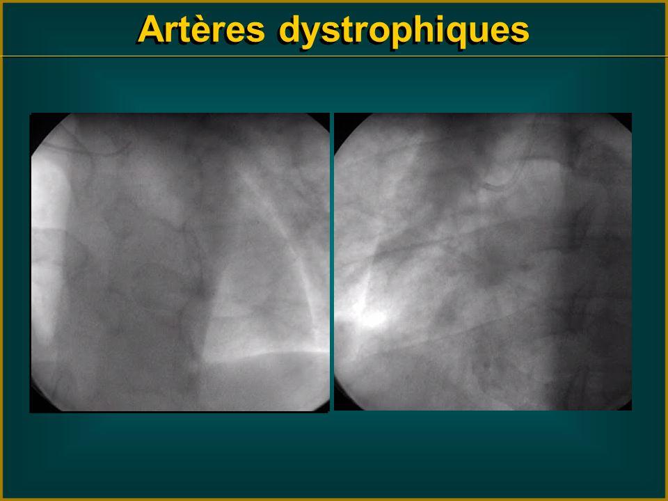 Artères dystrophiques
