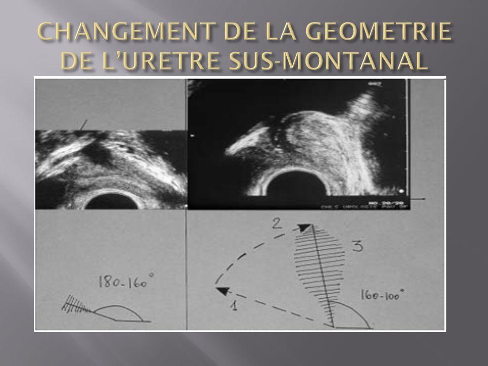CHANGEMENT DE LA GEOMETRIE DE L'URETRE SUS-MONTANAL