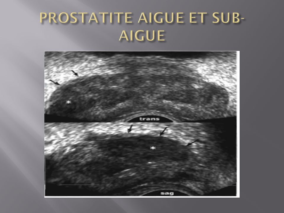 PROSTATITE AIGUE ET SUB-AIGUE