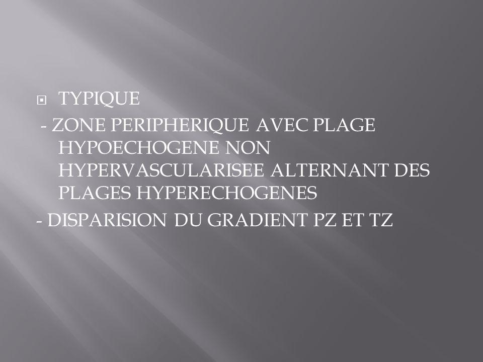 TYPIQUE - ZONE PERIPHERIQUE AVEC PLAGE HYPOECHOGENE NON HYPERVASCULARISEE ALTERNANT DES PLAGES HYPERECHOGENES.