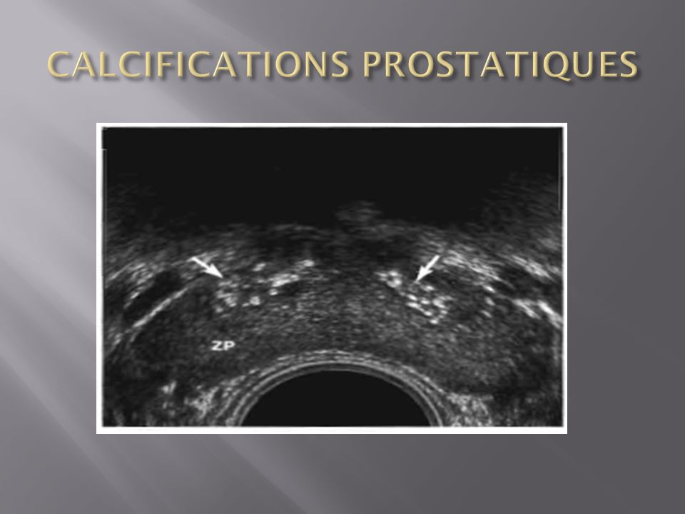 CALCIFICATIONS PROSTATIQUES