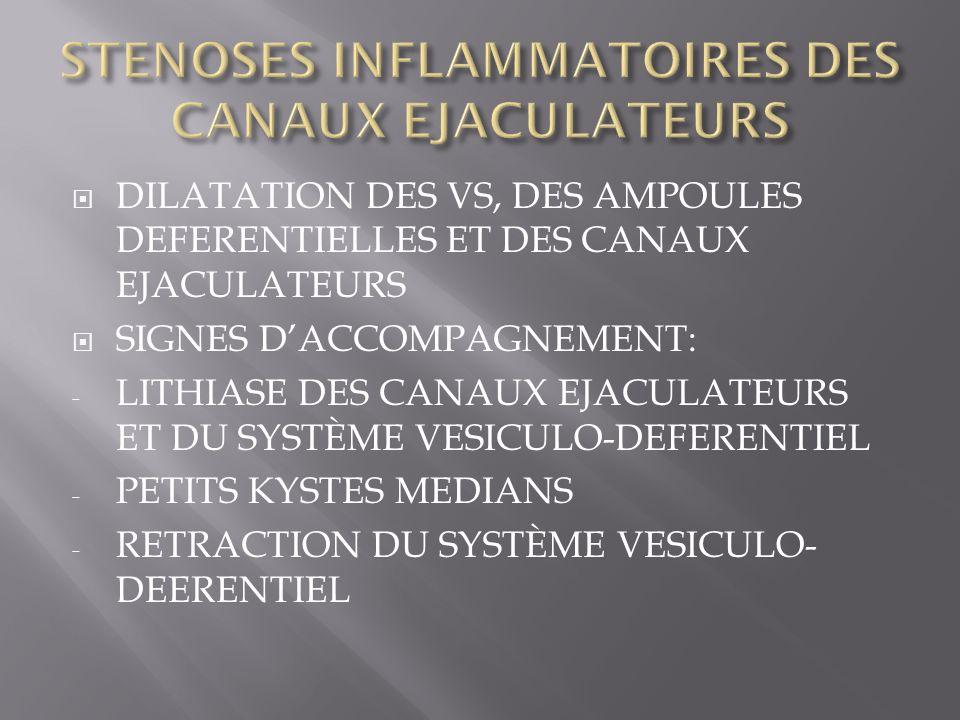 STENOSES INFLAMMATOIRES DES CANAUX EJACULATEURS