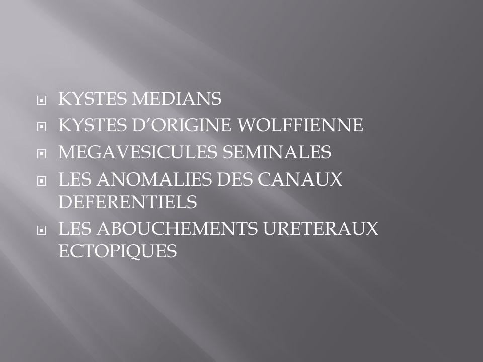 KYSTES MEDIANS KYSTES D'ORIGINE WOLFFIENNE. MEGAVESICULES SEMINALES. LES ANOMALIES DES CANAUX DEFERENTIELS.