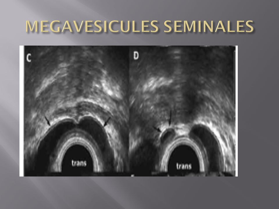 MEGAVESICULES SEMINALES