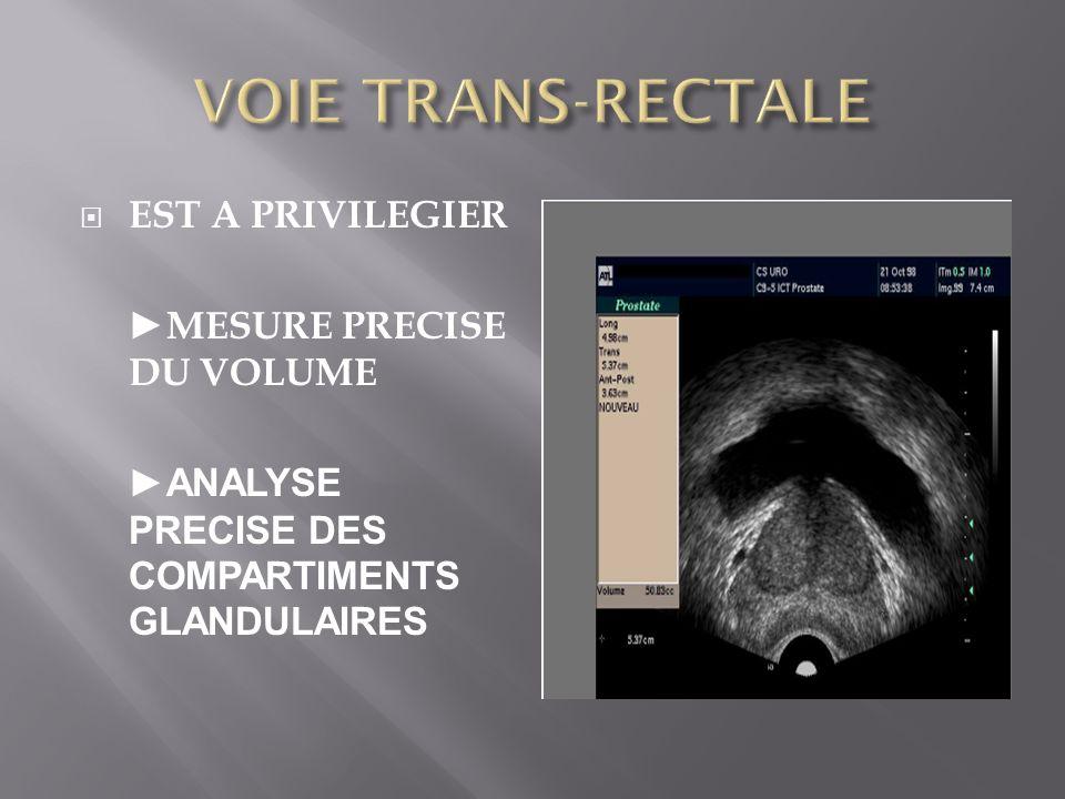 VOIE TRANS-RECTALE EST A PRIVILEGIER ►MESURE PRECISE DU VOLUME