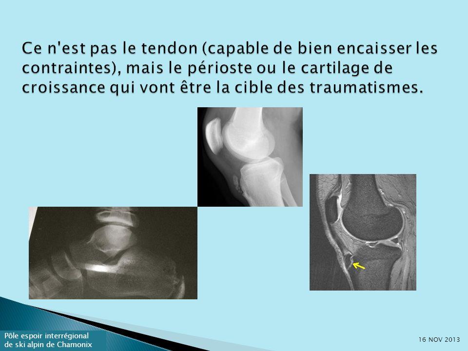 Ce n est pas le tendon (capable de bien encaisser les contraintes), mais le périoste ou le cartilage de croissance qui vont être la cible des traumatismes.