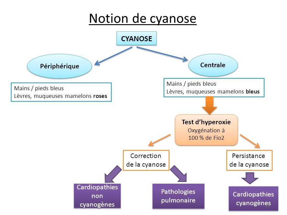 Notion de cyanose CYANOSE Périphérique Centrale Test d'hyperoxie