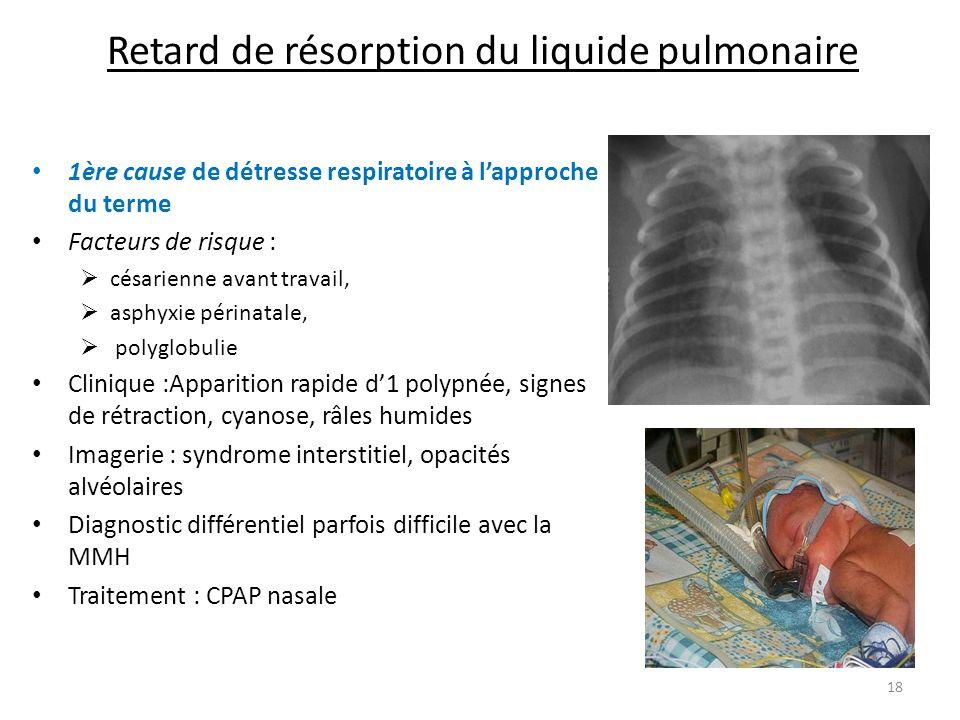 Retard de résorption du liquide pulmonaire