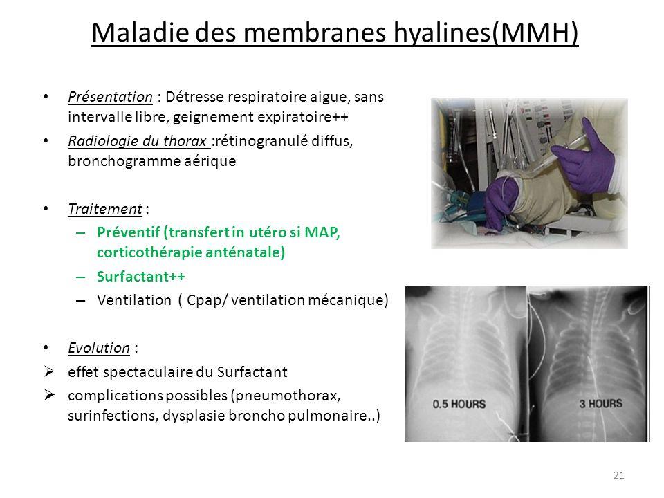 Maladie des membranes hyalines(MMH)
