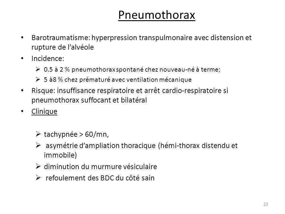 Pneumothorax Barotraumatisme: hyperpression transpulmonaire avec distension et rupture de l'alvéole.