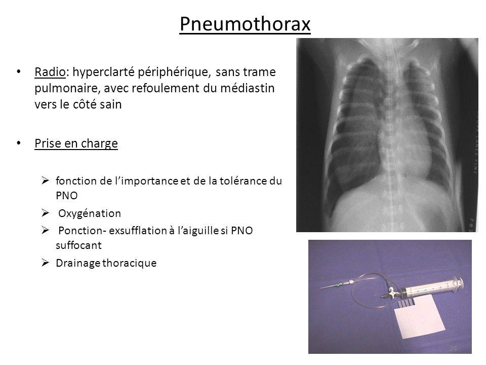 Pneumothorax Radio: hyperclarté périphérique, sans trame pulmonaire, avec refoulement du médiastin vers le côté sain.