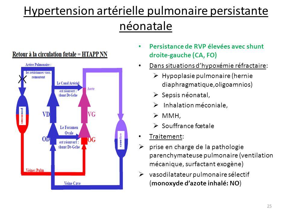 Hypertension artérielle pulmonaire persistante néonatale