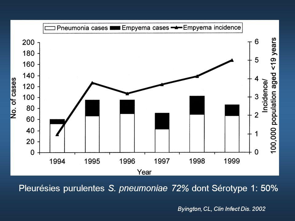 Pleurésies purulentes S. pneumoniae 72% dont Sérotype 1: 50%