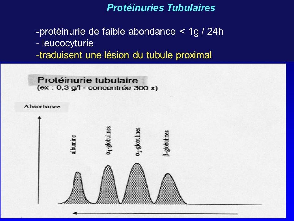 Protéinuries Tubulaires