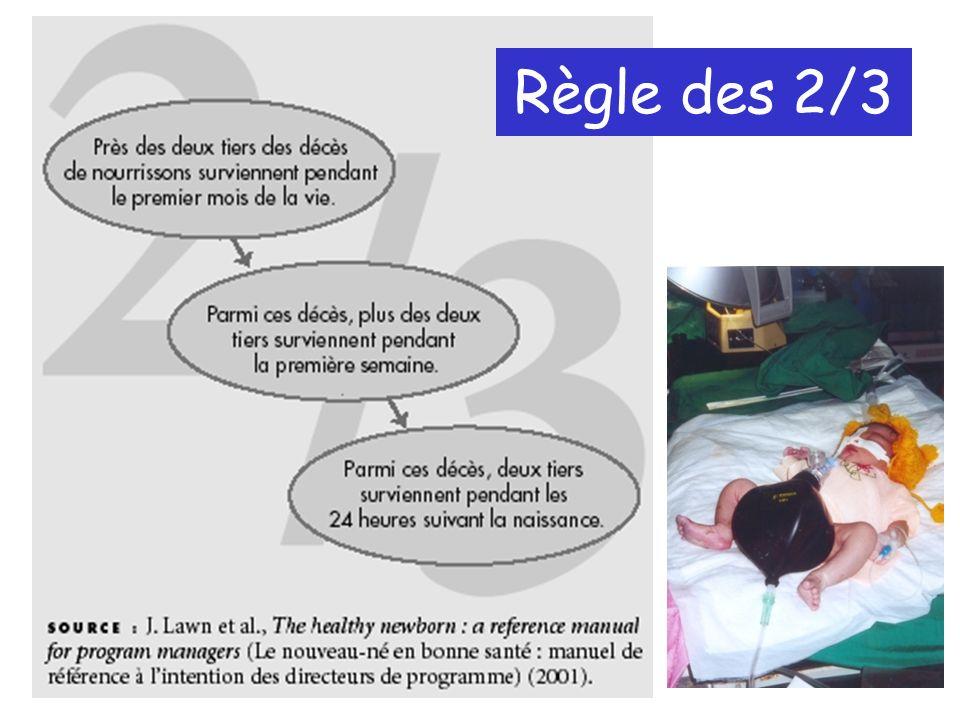 Règle des 2/3 Parmi les décès chez les nourrissons, 2/3 ont lieu le premier mois de vie.